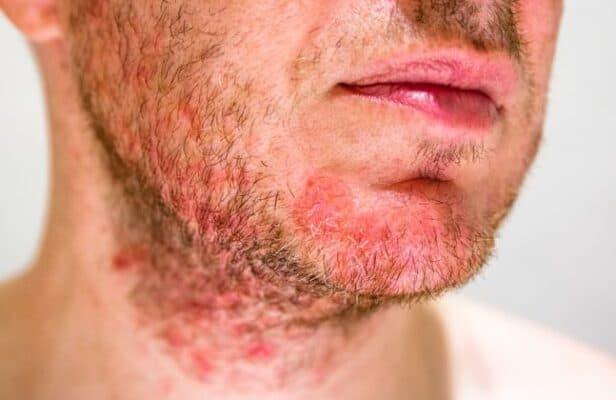 fungal acne fatal
