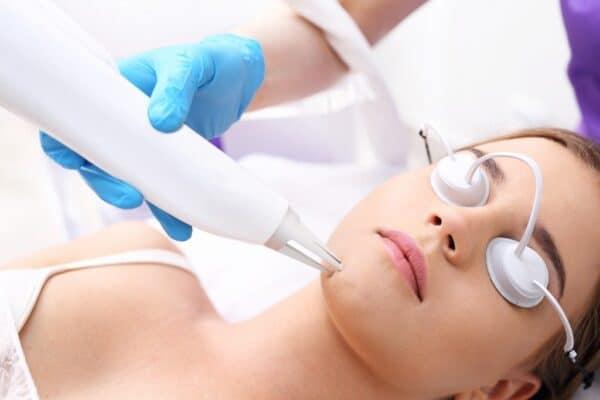 permanent acne treatment